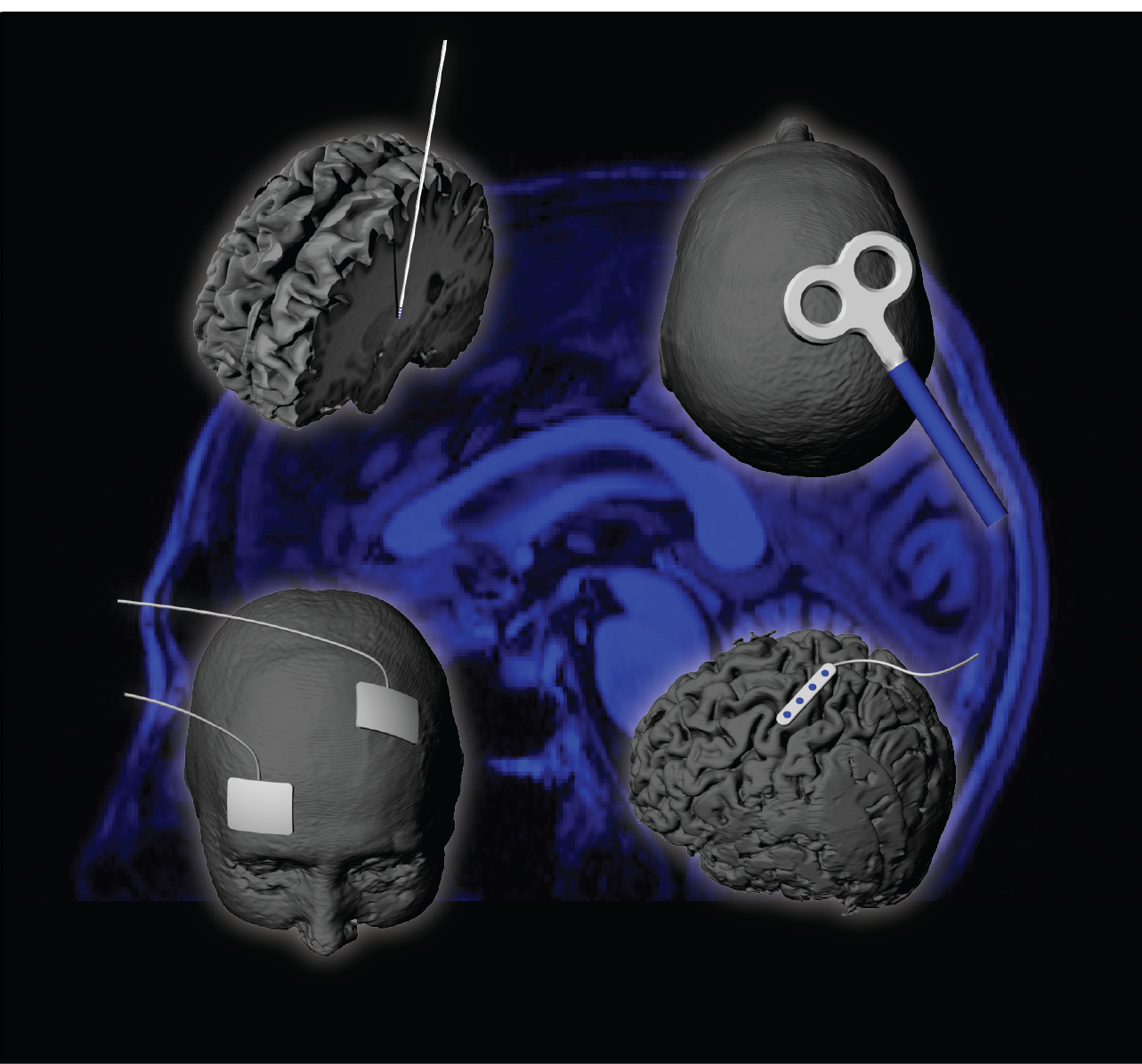 highlight photo featured research in neuromodulation